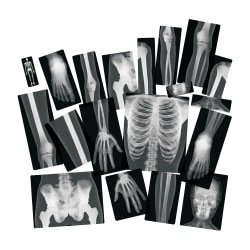 Roylco True to Life Human X-rays Set - Theme/Subject: Radiology - Skill Learning: Radiography - 18 Pieces - 5+